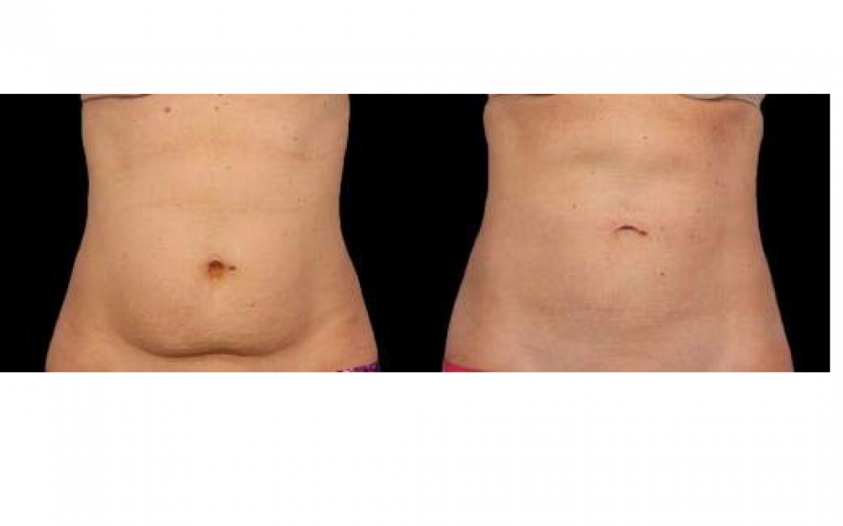 antes y despues coolsculpting abdomen