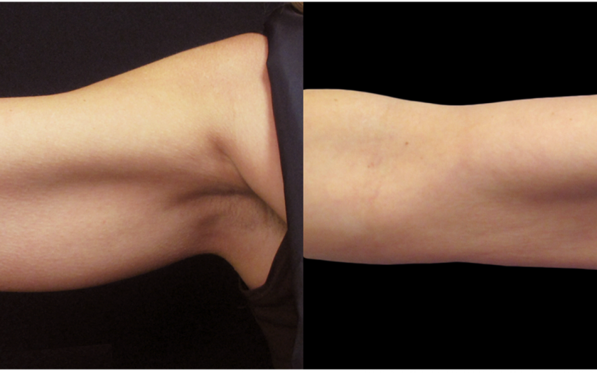 antes y despues coolsculpting brazos