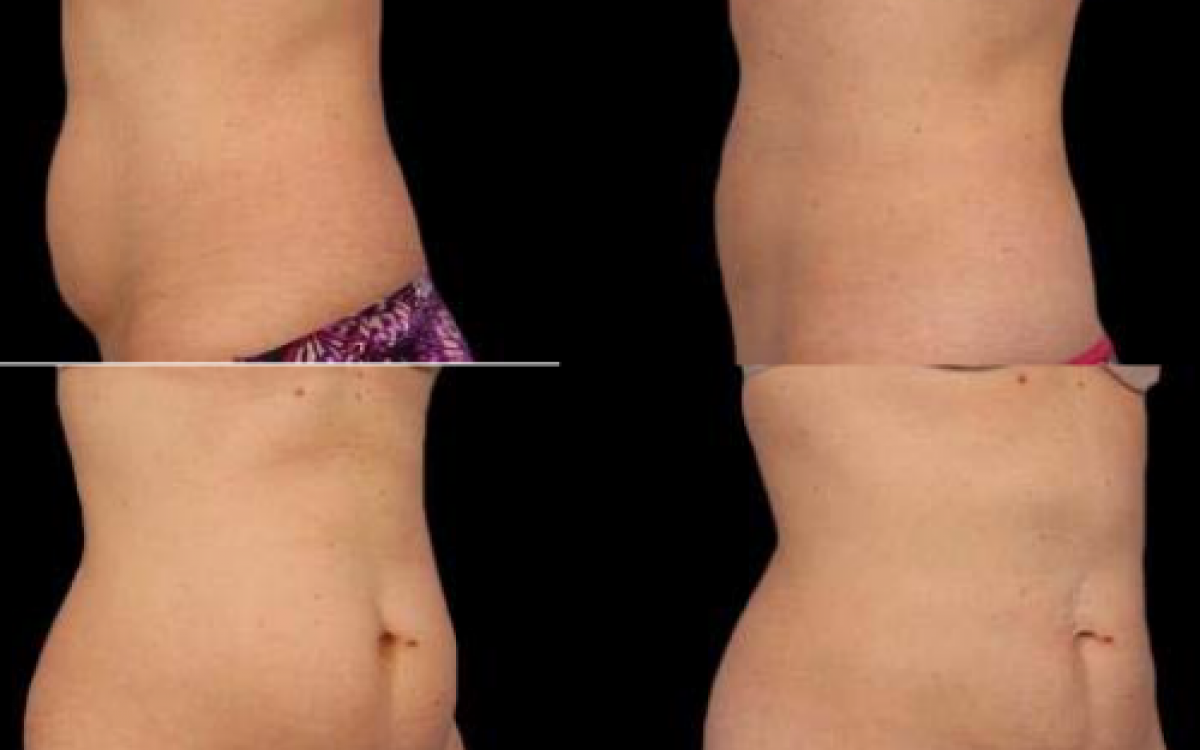 antes y despues coolsculpting