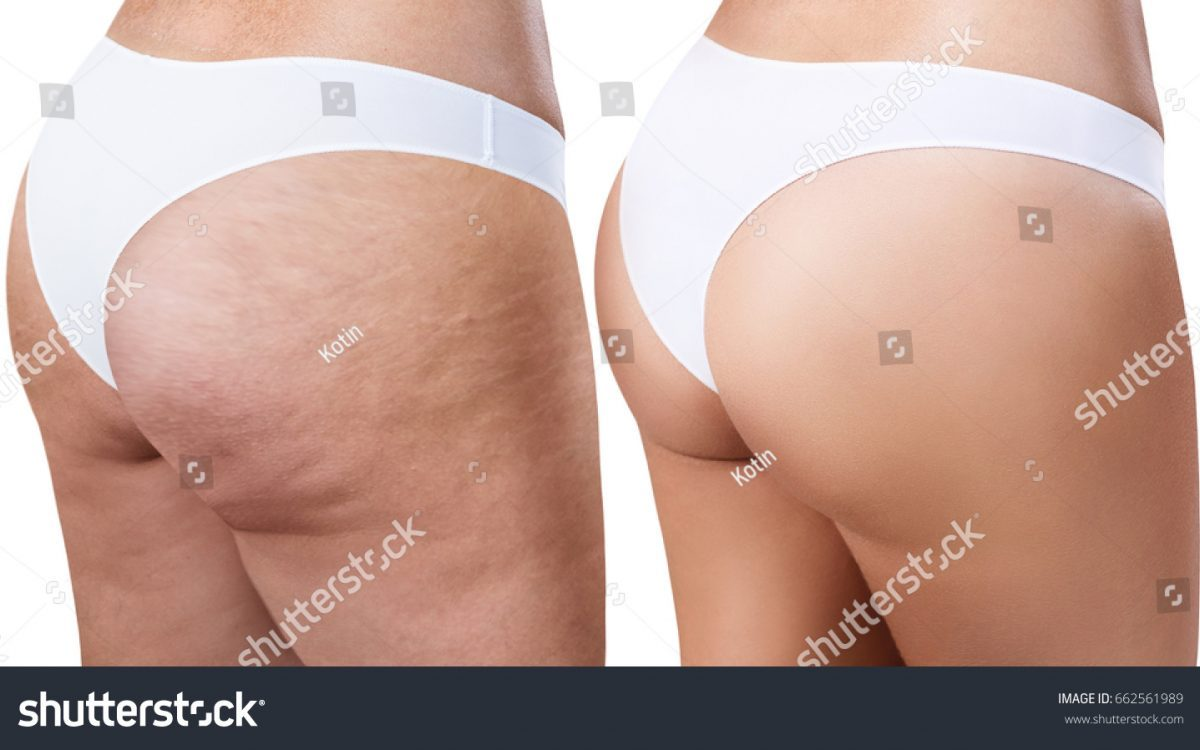 antes y despues coolsculpting nalgas