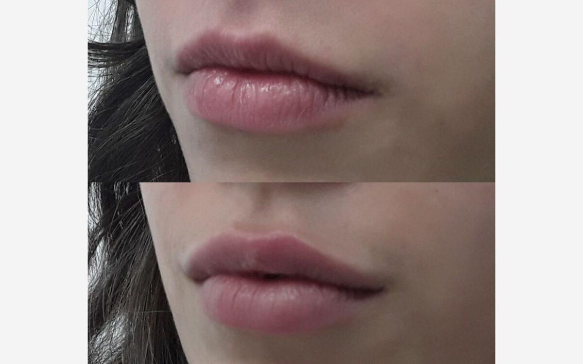 imagen antes y despues de aumento de labios