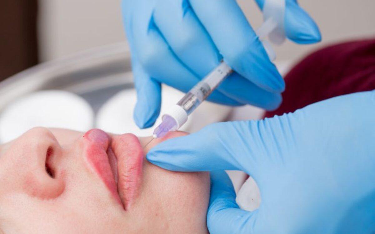 medico poniendo inyeccion de acido hialuronico en labios