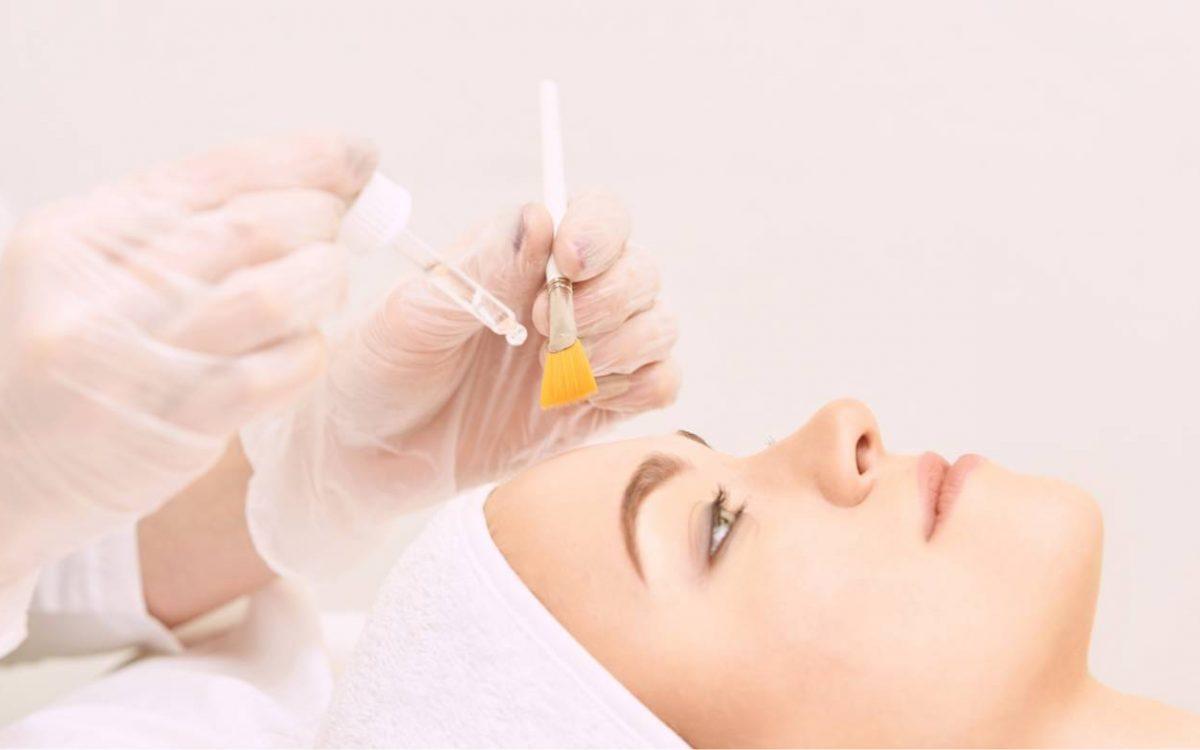 aplicación de tratamiento de eliminación de acné