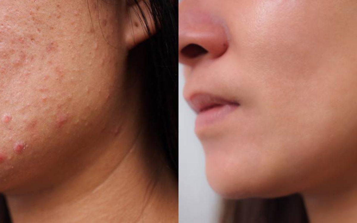 imagen de mujer antes y después de eliminar marcas de acné