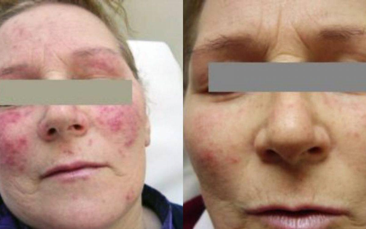 imagen antes y después de eliminar manchas de acné