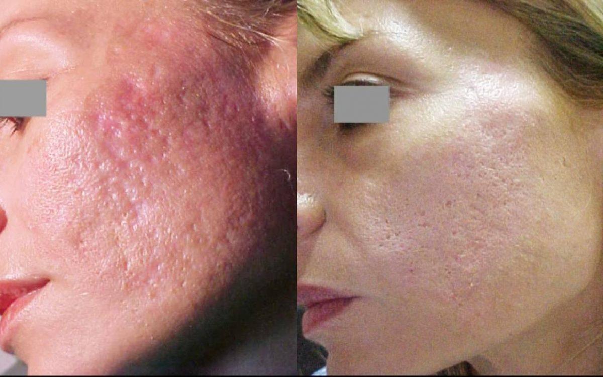 imagen antes y después de quitar manchas de acné