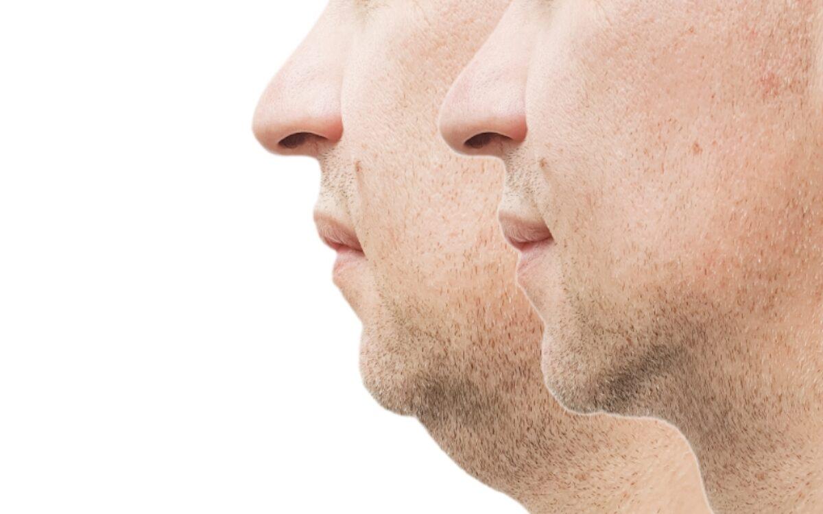 imagen de hombre antes y después de quitar la papada