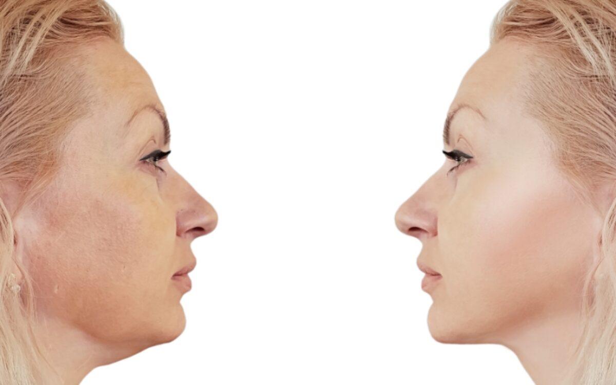 imagen de mujer antes y despues de tratamiento para quitar la papada