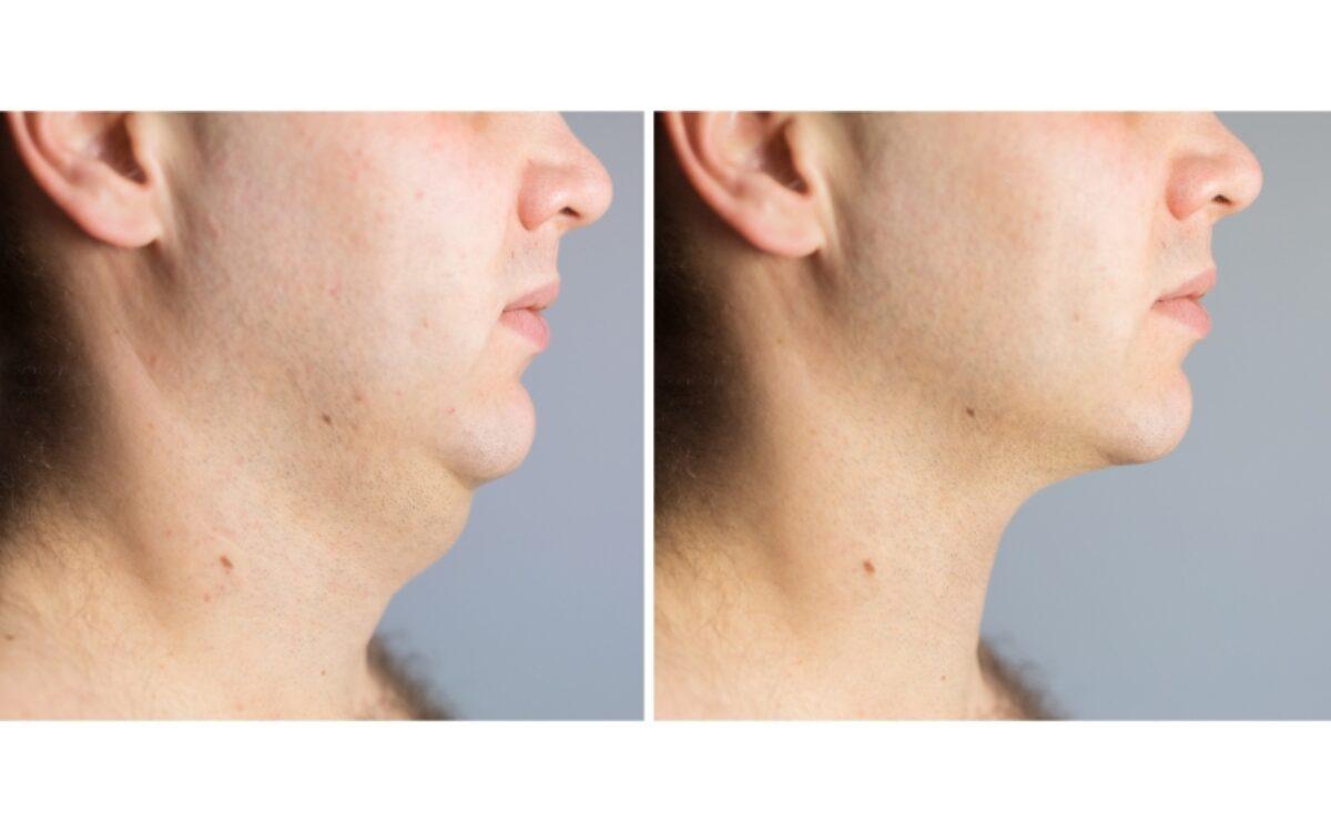 cara de hombre antes y después de tratamiento para quitar la papada