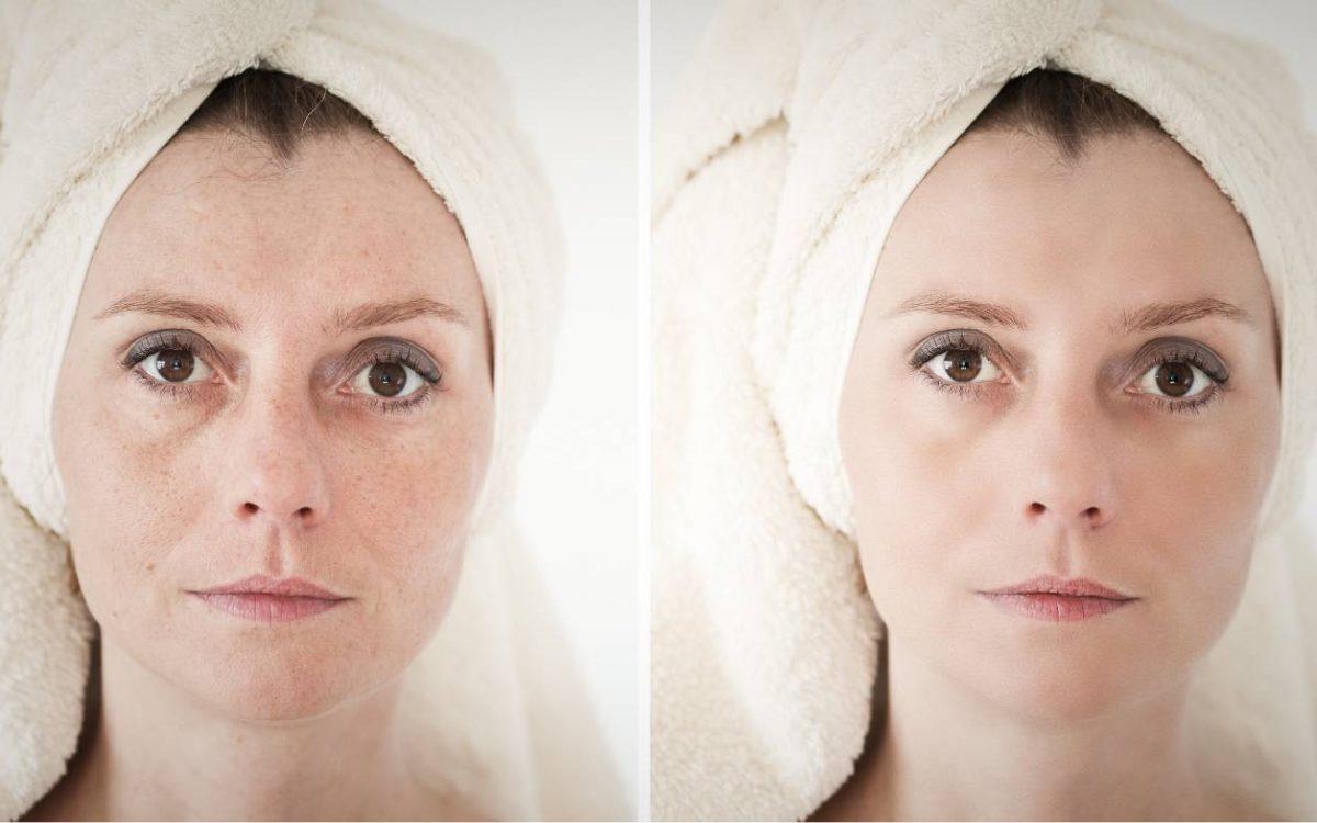 antes y despues peeling facial