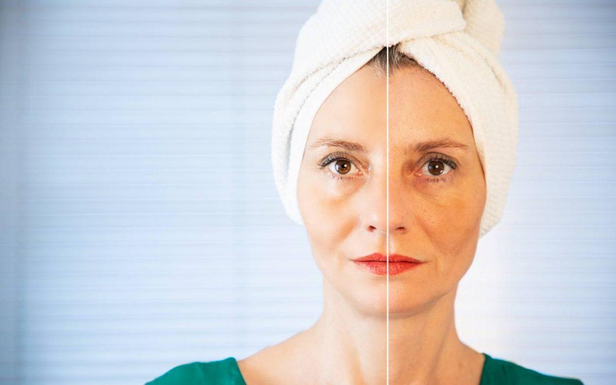 antes y despues peeling quimico facial