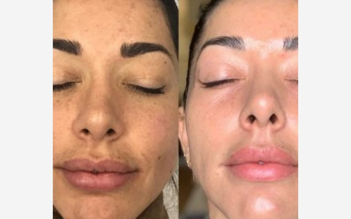 imágenes cara mujer antes y depués rejuvenecimiento facia