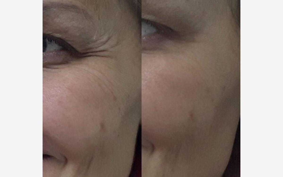 imágenes antes y después rejuvenecimiento facia