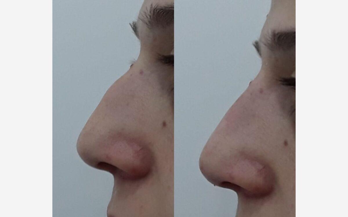 imagen antes y despues de rinomodelacion
