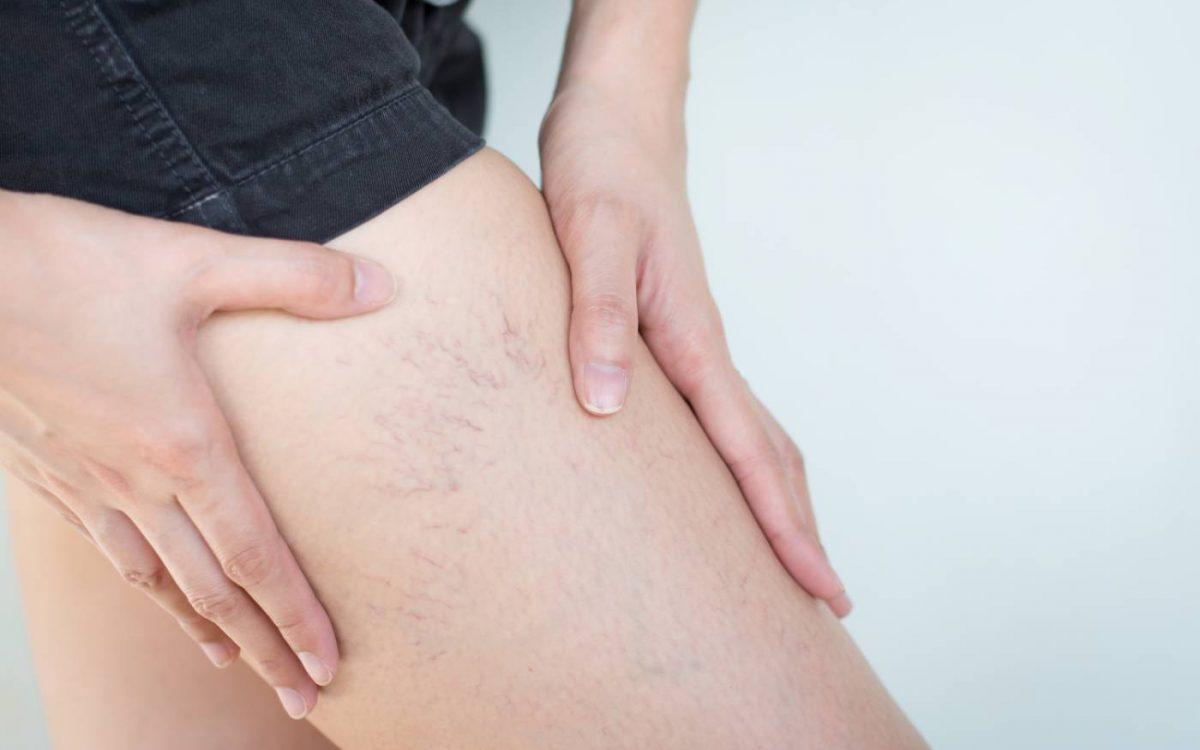 arañas vasculares en la pierna