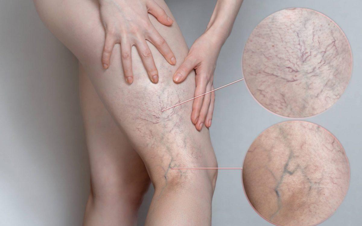 arañas venosas en la pierna