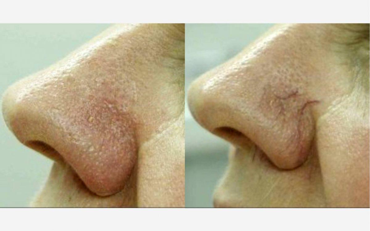 nariaz antes y después de eliminar arañas vasculares