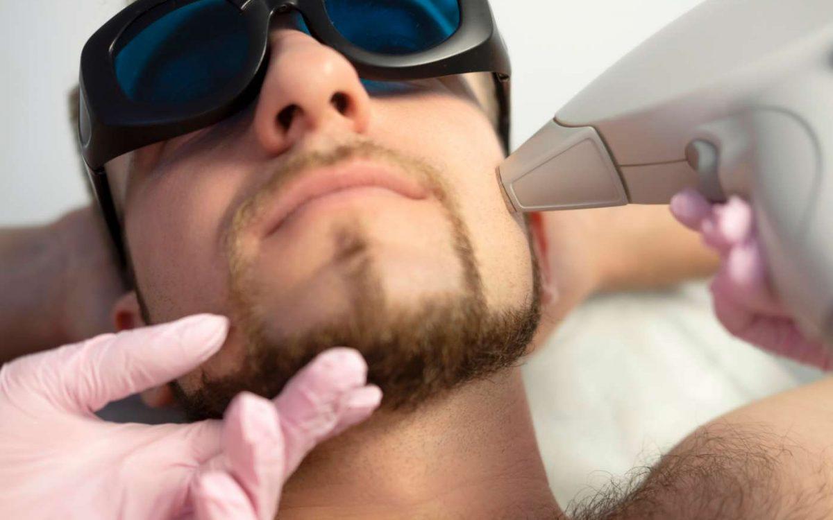 depilación facial láser con diodo en cara de paciente masculino