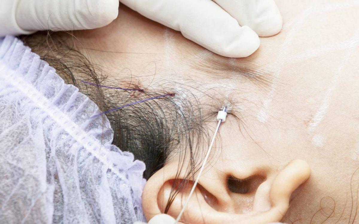 medico aplicando hilo tensor en la cara del paciente