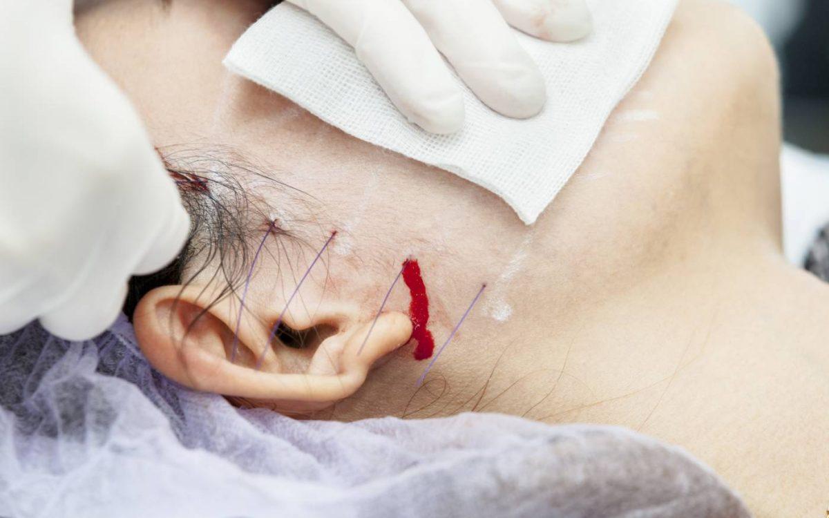 cara de paciente recibiendo tratamiento de hilos tensores