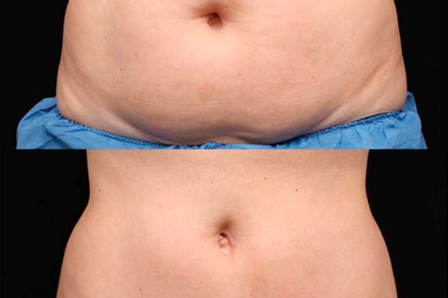 Cómo eliminar grasa localizada sin cirugía
